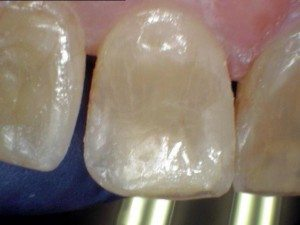 After photo - Tooth #9 with a Herculite filling.