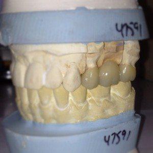 3 unit dental bridge, still on the models.