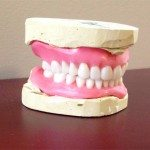 This is the way the denture looks like in wax; tooth color is shade A1. Mike's visit is scheduled today.