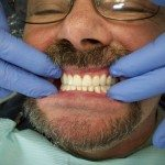 We visually check to see how the denture looks. This is an ideal overjet/overbite — looks good!