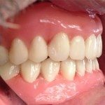 """Here are the teeth, set in wax. I am a big fan of Dentsply Portrait teeth. I like the fact that they have a lot of """"personality."""" Sometimes pictures don't do justice to how good they really look."""