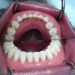 The lower wax denture in place. Note, photo is of the lower denture and the reflection in the mirror.