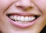 Number Of Adults Seeking Orthodontic Treatments.