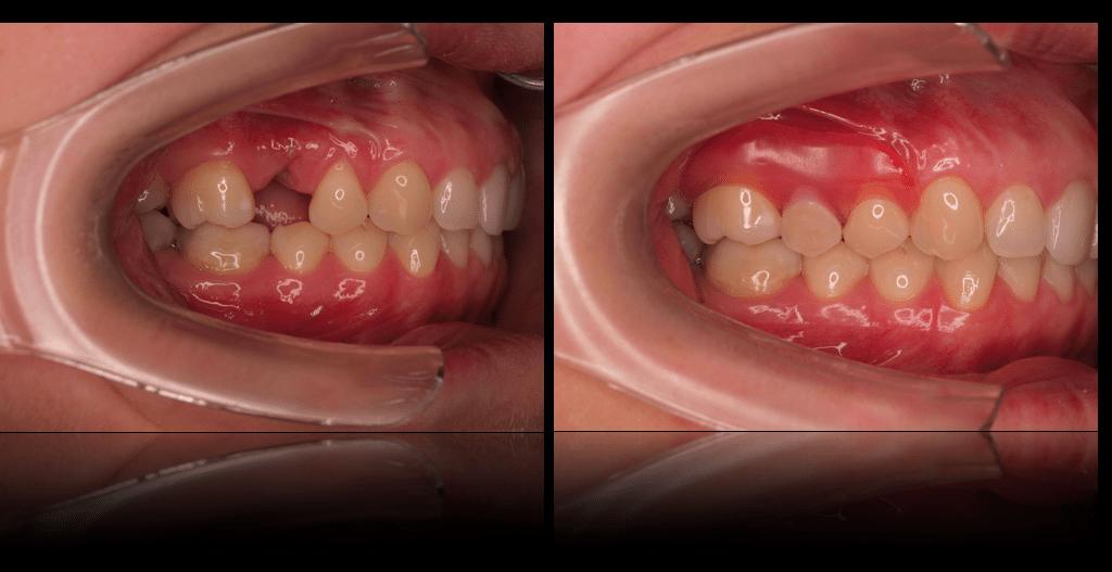 Valplast in the mouth