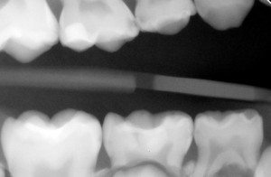 X-ray showing from a young patient with holes in his teeth.