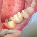 Brenda's Implant Tooth #30