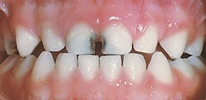 Decay in baby teeth