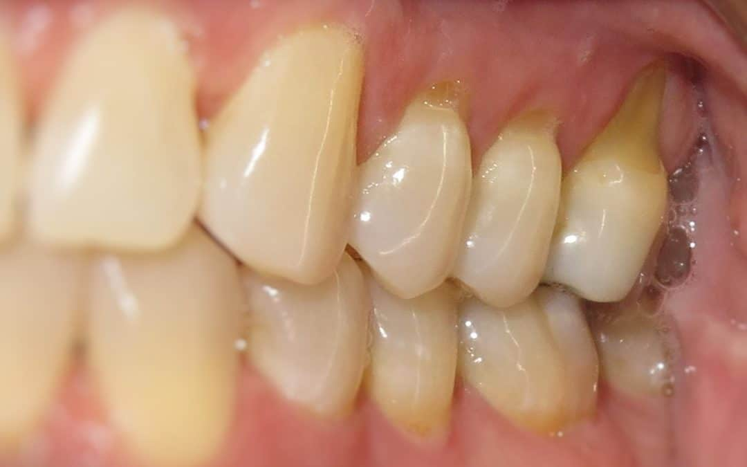 Gum Recession: It's About More Than Just Brushing Too Hard