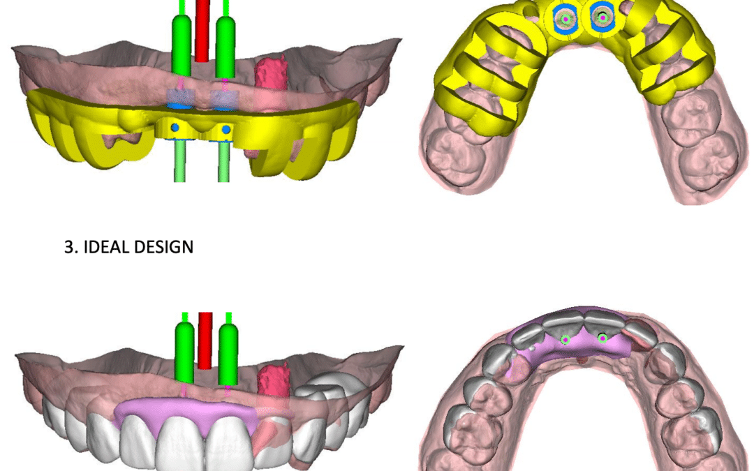 Benefits of Computer-Guided Implant Placement
