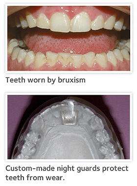 Do You Grind Your Teeth?