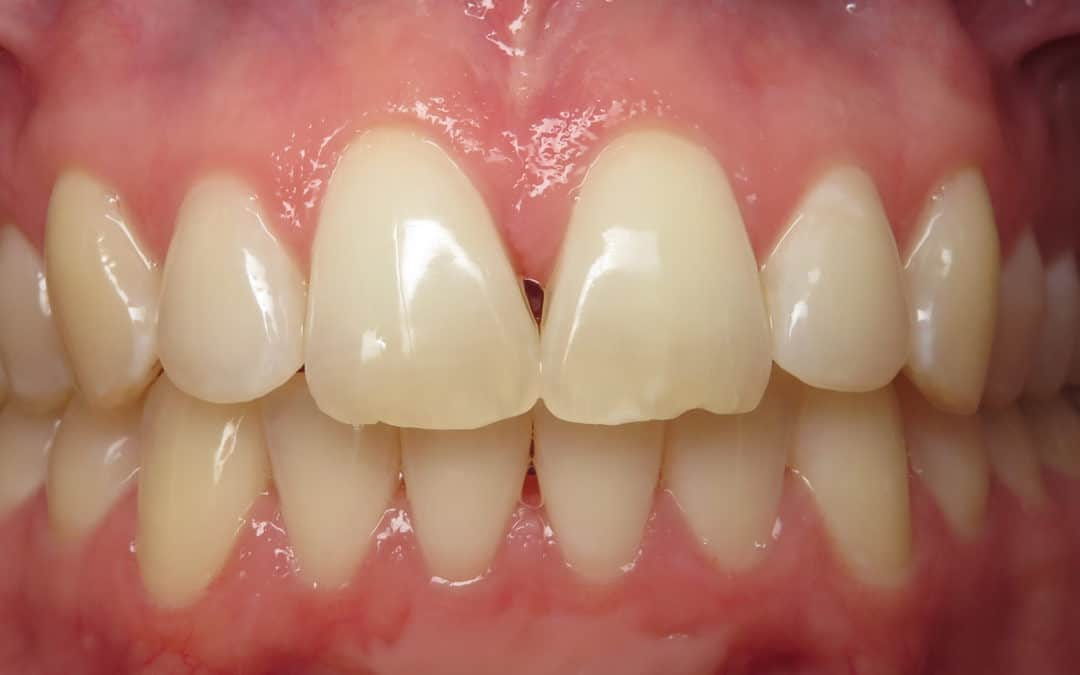 What are dental black triangles?