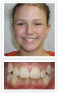 Before orthodontic treatment