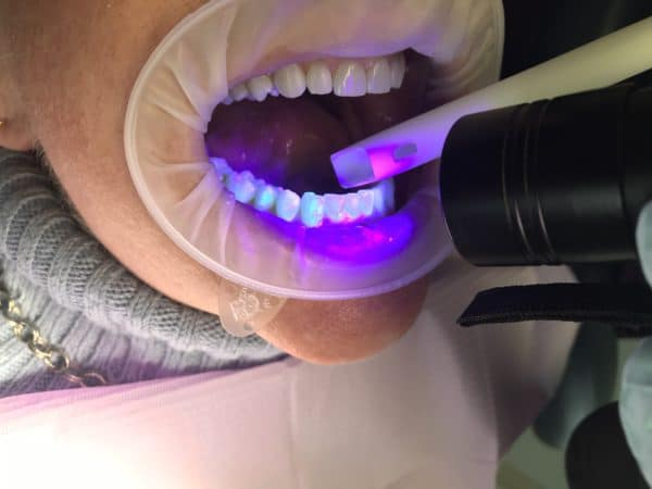 dental blue light being used to locate Invisalign buttons