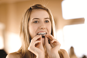 Tooth Whitening using custom trays.